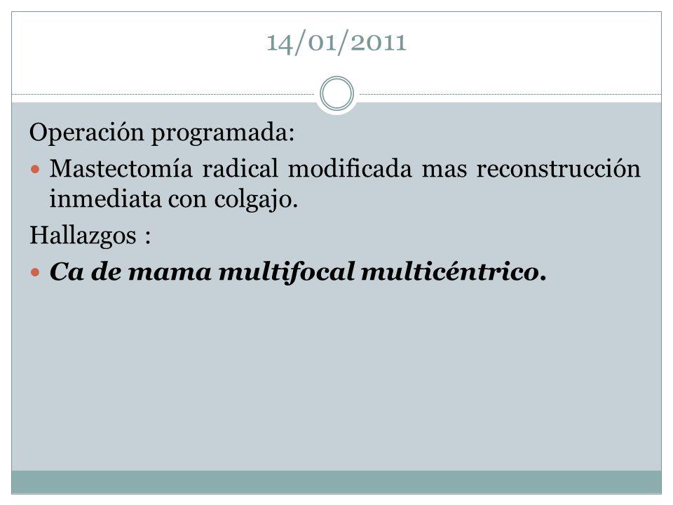14/01/2011 Operación programada: