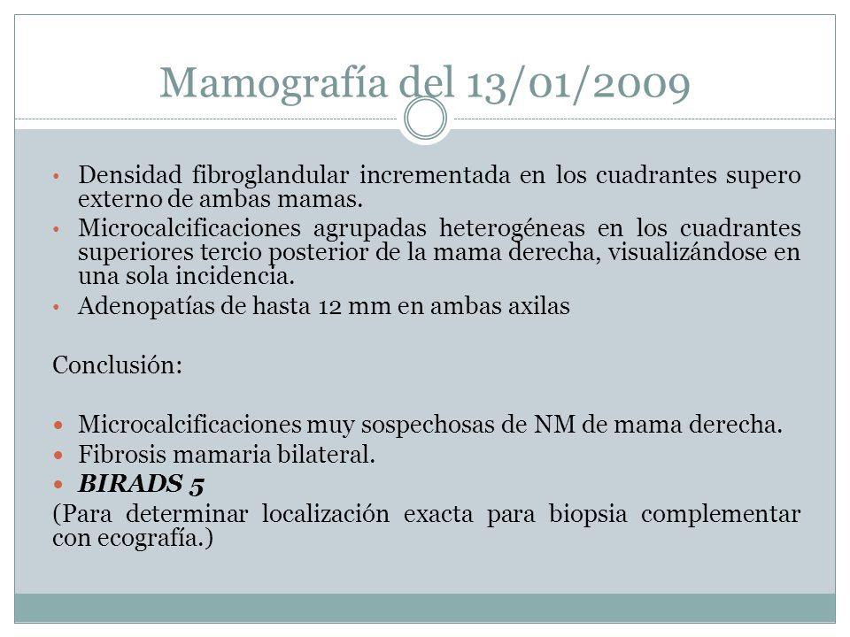 Mamografía del 13/01/2009 Densidad fibroglandular incrementada en los cuadrantes supero externo de ambas mamas.