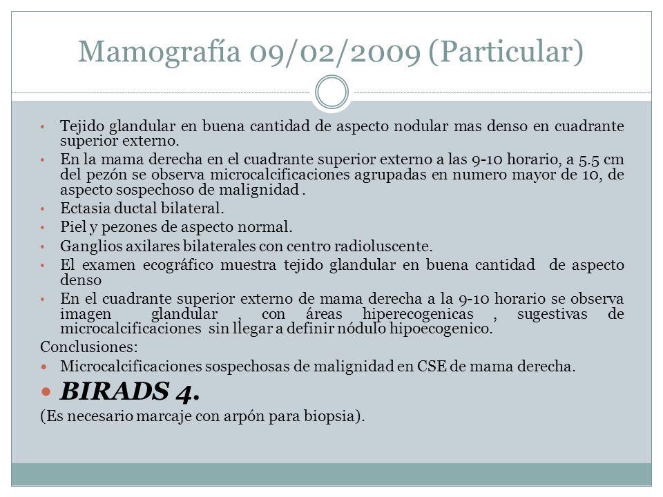 Mamografía 09/02/2009 (Particular)