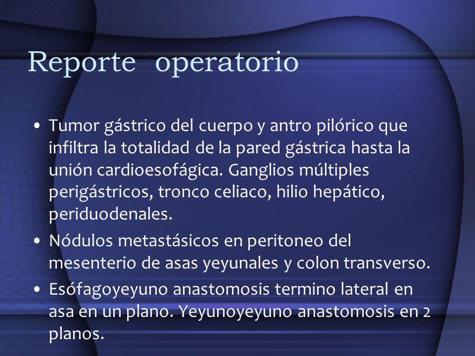 Reporte operatorio