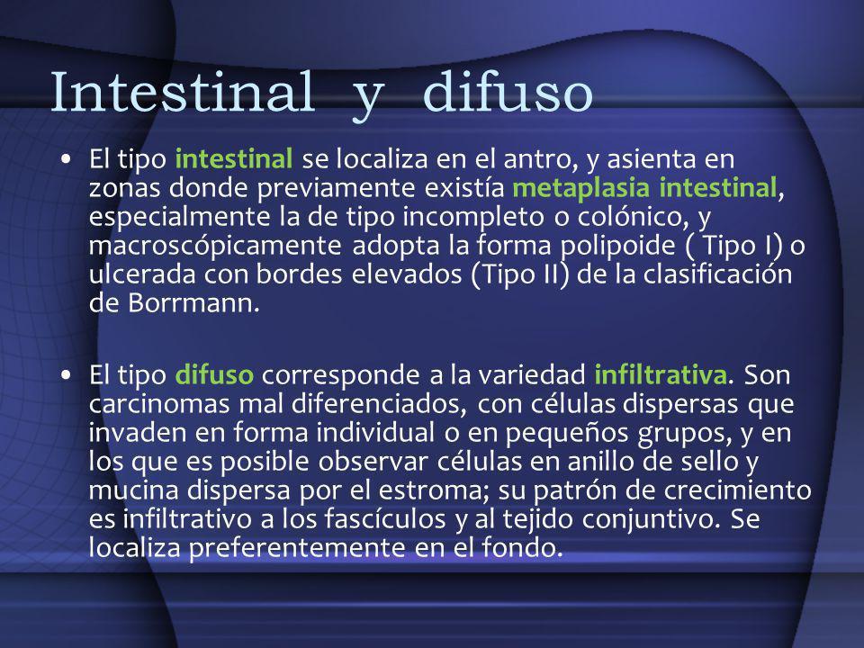 Intestinal y difuso