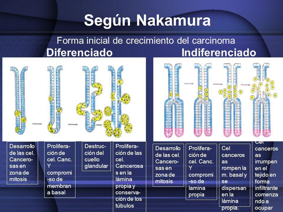 Forma inicial de crecimiento del carcinoma