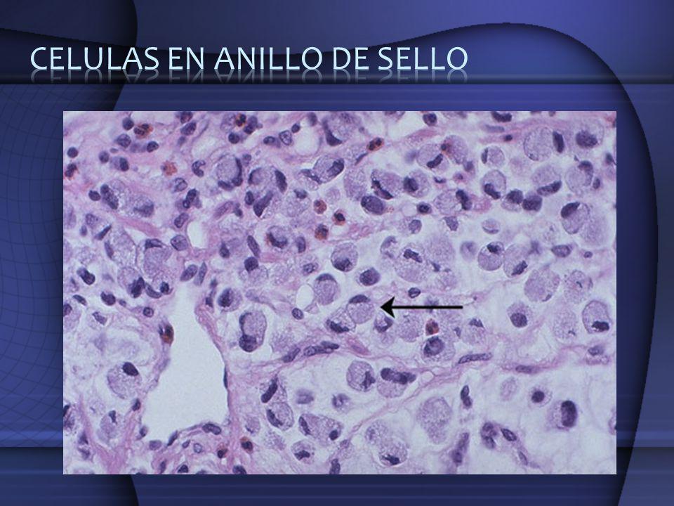 CELULAS EN ANILLO DE SELLO