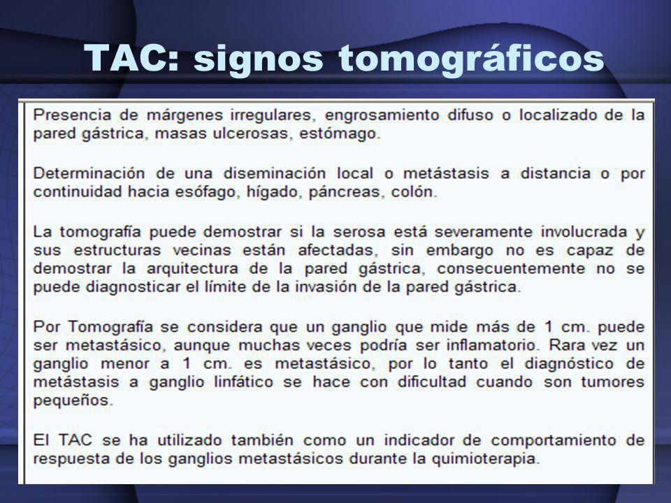 TAC: signos tomográficos