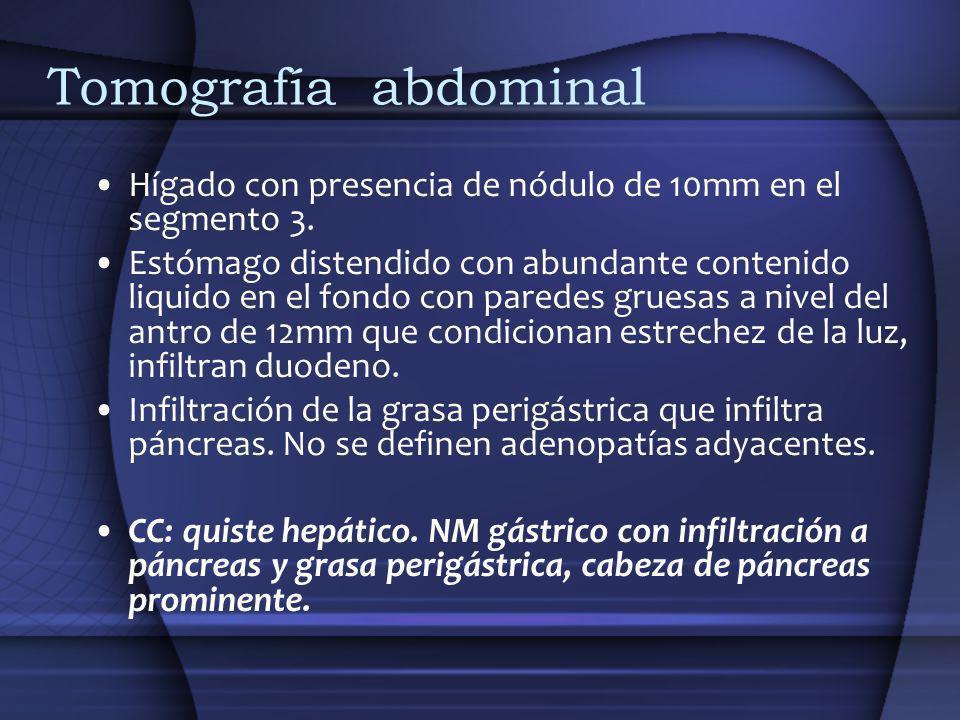 Tomografía abdominal Hígado con presencia de nódulo de 10mm en el segmento 3.