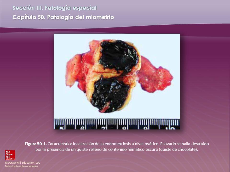 Figura 50-1. Característica localización de la endometriosis a nivel ovárico.
