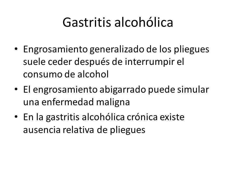 Gastritis alcohólica Engrosamiento generalizado de los pliegues suele ceder después de interrumpir el consumo de alcohol.