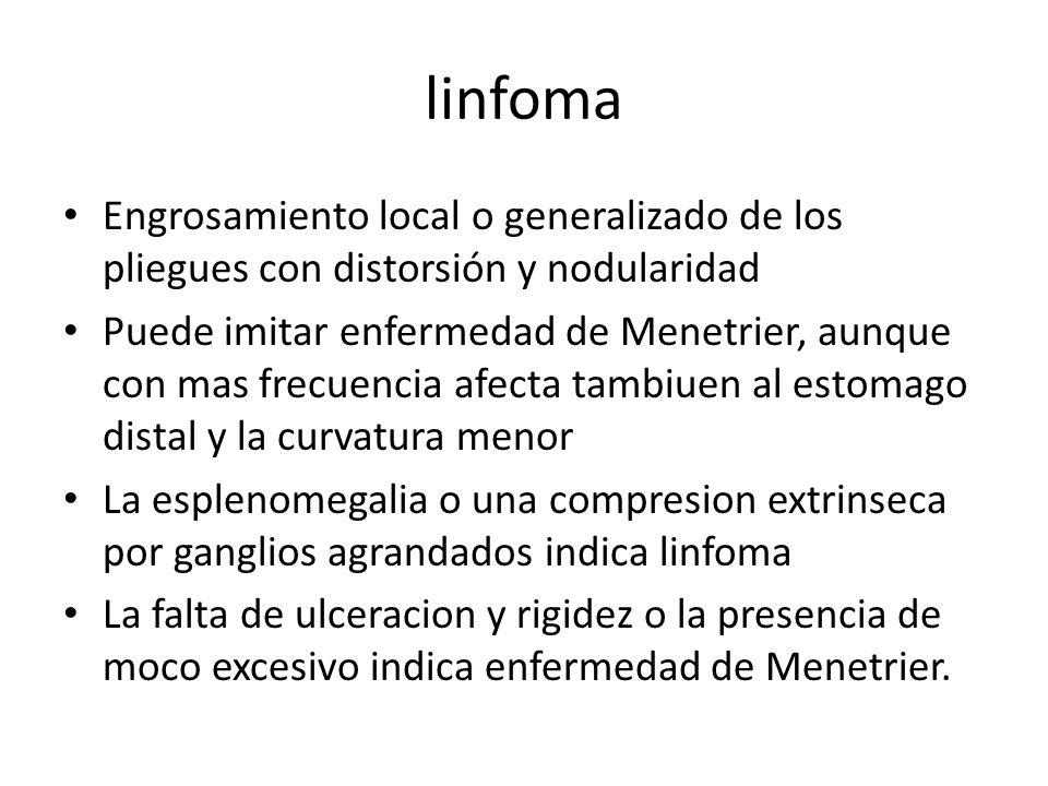 linfoma Engrosamiento local o generalizado de los pliegues con distorsión y nodularidad.