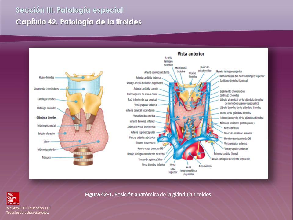 Figura 42-1. Posición anatómica de la glándula tiroides.