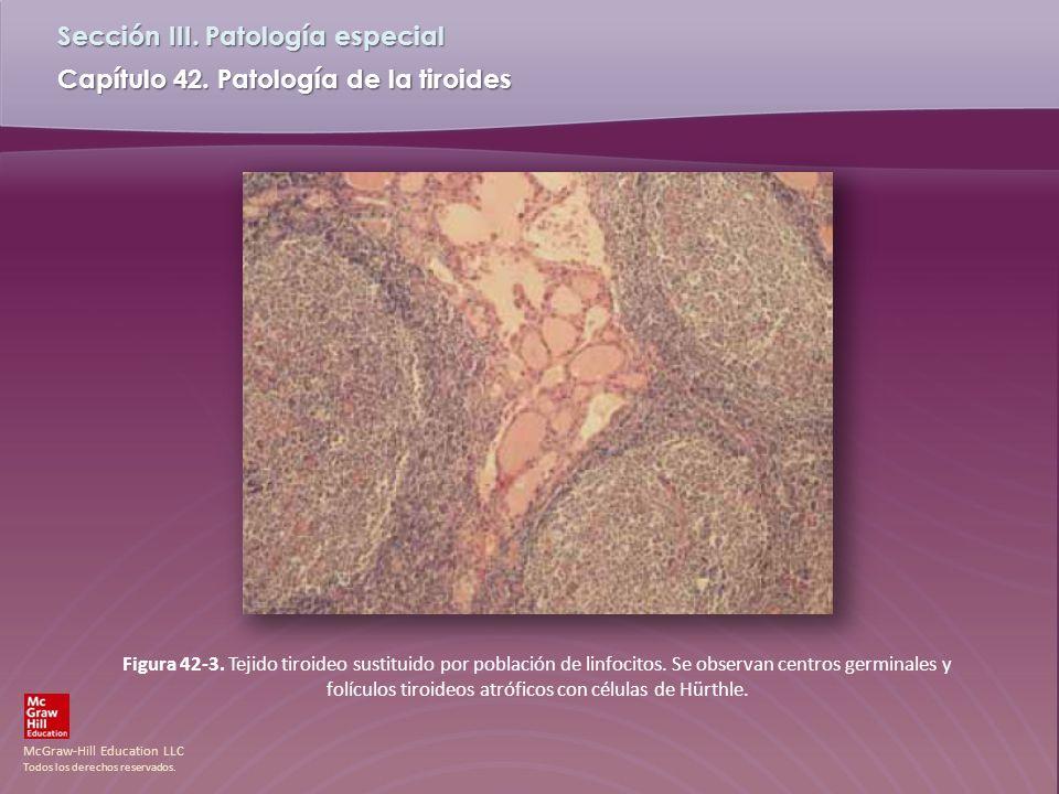 Figura 42-3. Tejido tiroideo sustituido por población de linfocitos