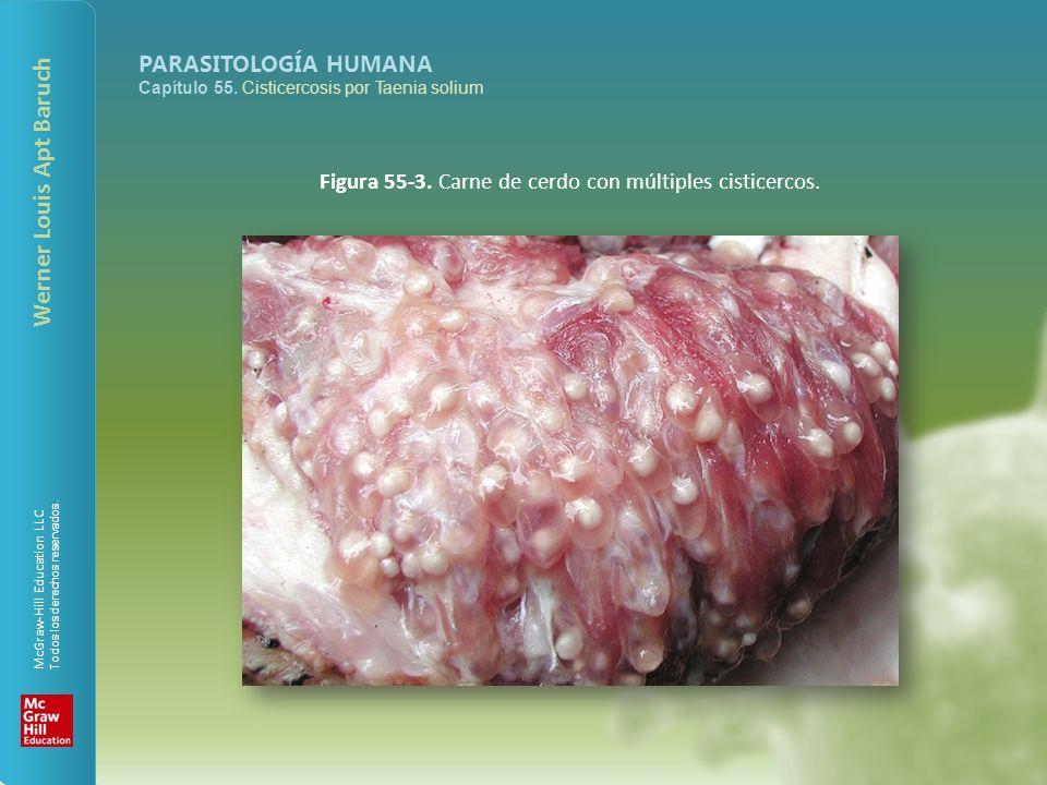 Figura 55-3. Carne de cerdo con múltiples cisticercos.