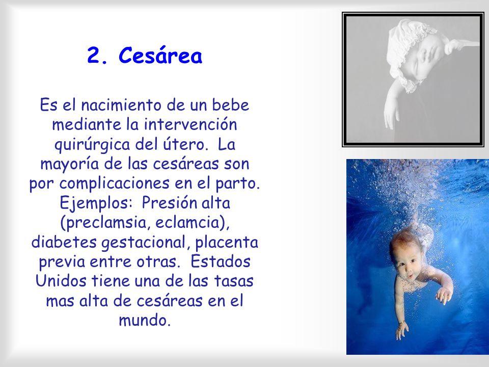 2. Cesárea Es el nacimiento de un bebe mediante la intervención quirúrgica del útero.