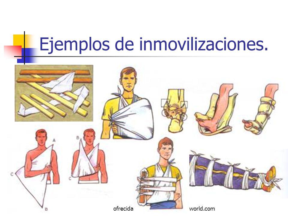 Ejemplos de inmovilizaciones.