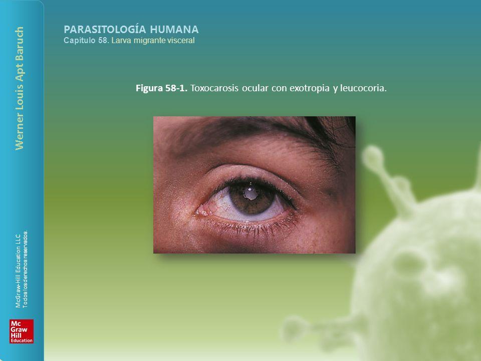 Figura 58-1. Toxocarosis ocular con exotropia y leucocoria.