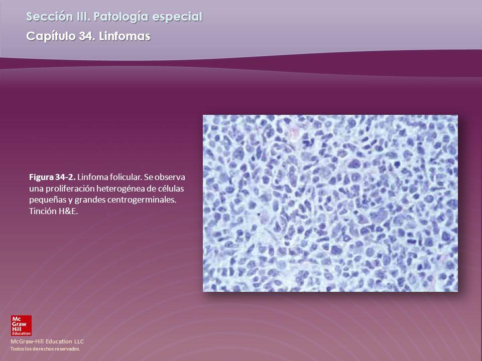 Figura 34-2. Linfoma folicular