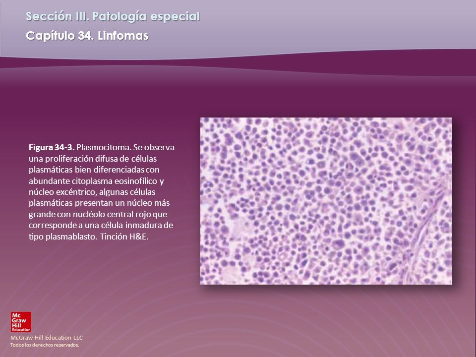 Figura 34-3. Plasmocitoma.