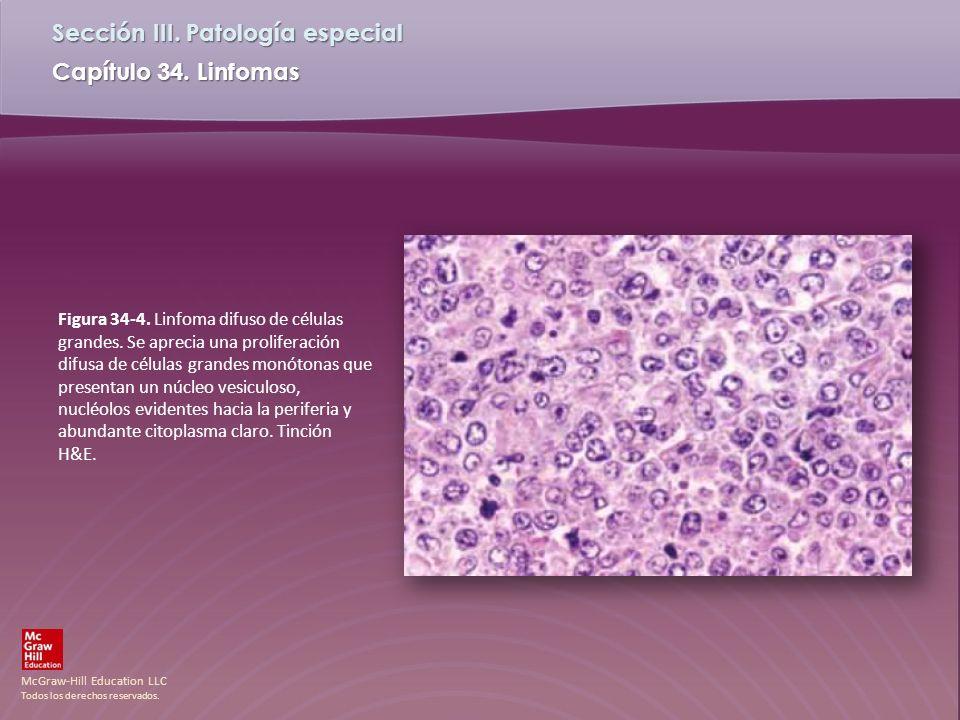 Figura 34-4. Linfoma difuso de células grandes