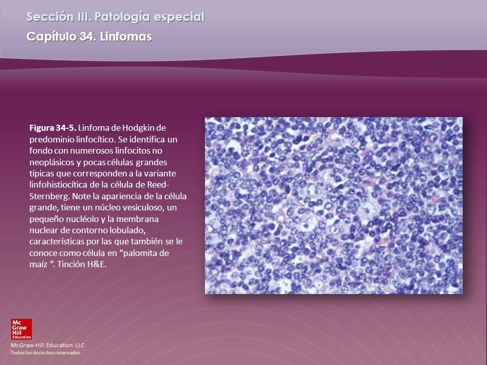 Figura 34-5. Linfoma de Hodgkin de predominio linfocítico