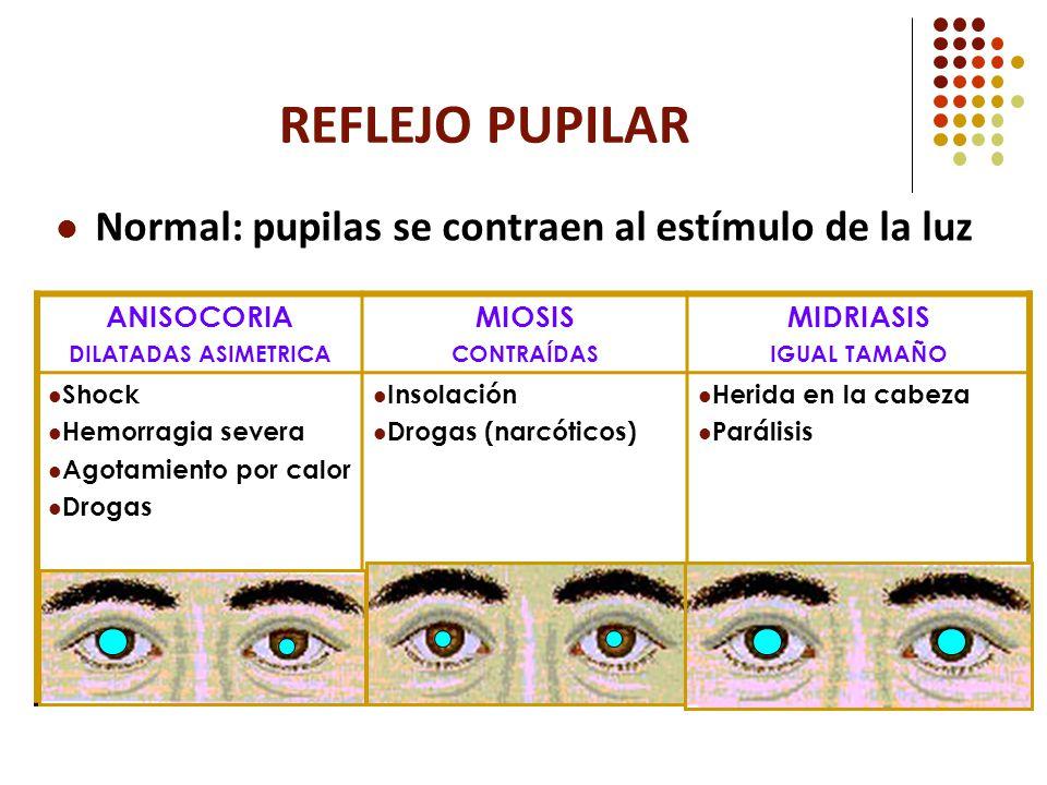REFLEJO PUPILAR Normal: pupilas se contraen al estímulo de la luz