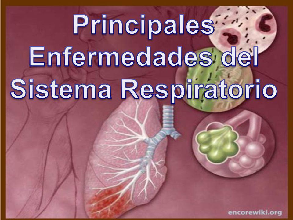 Principales Enfermedades del Sistema Respiratorio