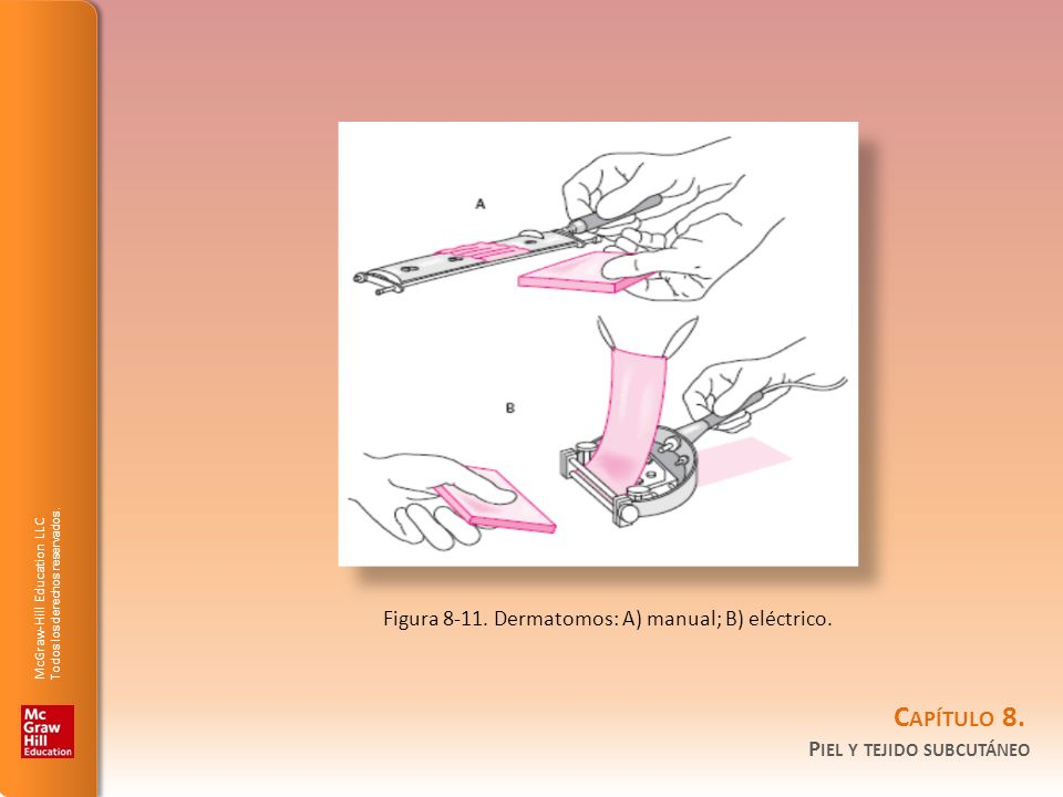 Figura 8-11. Dermatomos: A) manual; B) eléctrico.