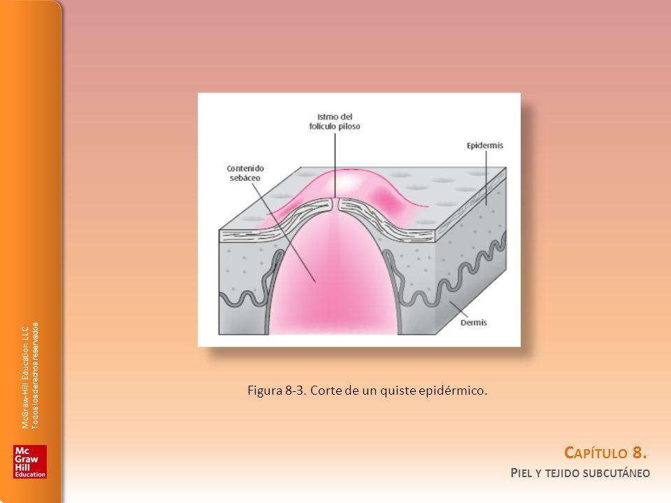 Figura 8-3. Corte de un quiste epidérmico.