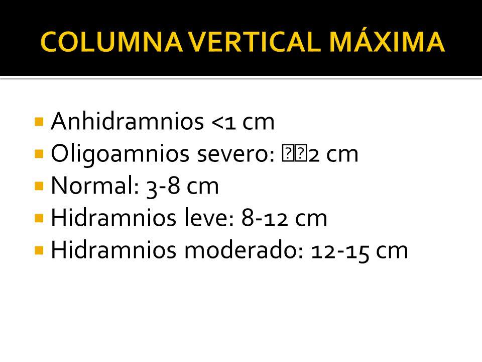 Columna vertical máxima