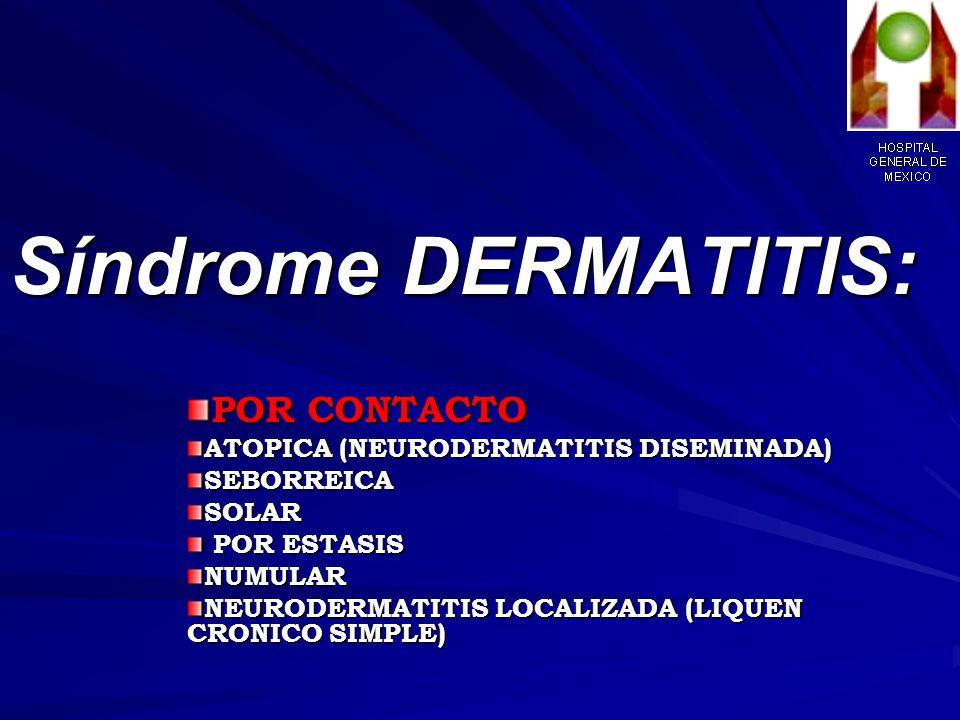 Síndrome DERMATITIS: POR CONTACTO ATOPICA (NEURODERMATITIS DISEMINADA)