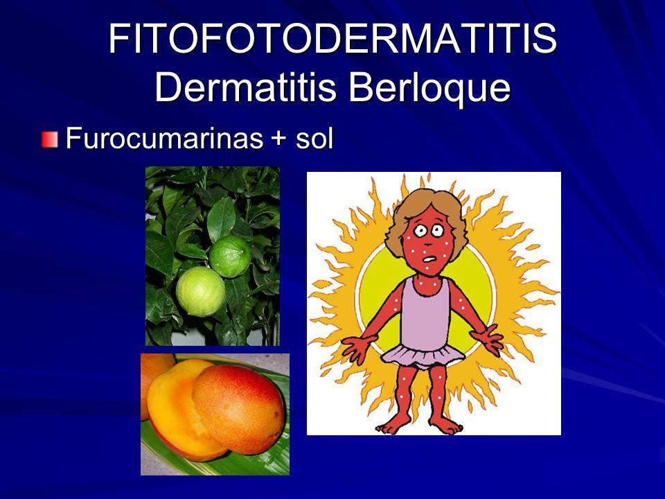 FITOFOTODERMATITIS Dermatitis Berloque