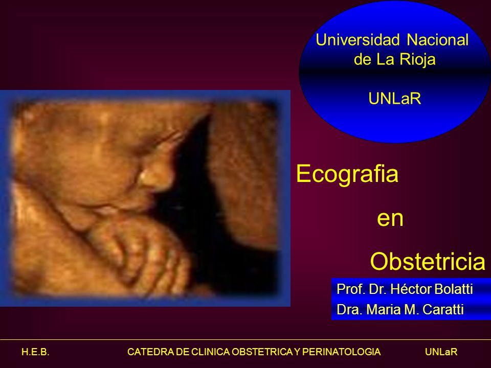 Ecografia en Obstetricia Universidad Nacional de La Rioja UNLaR