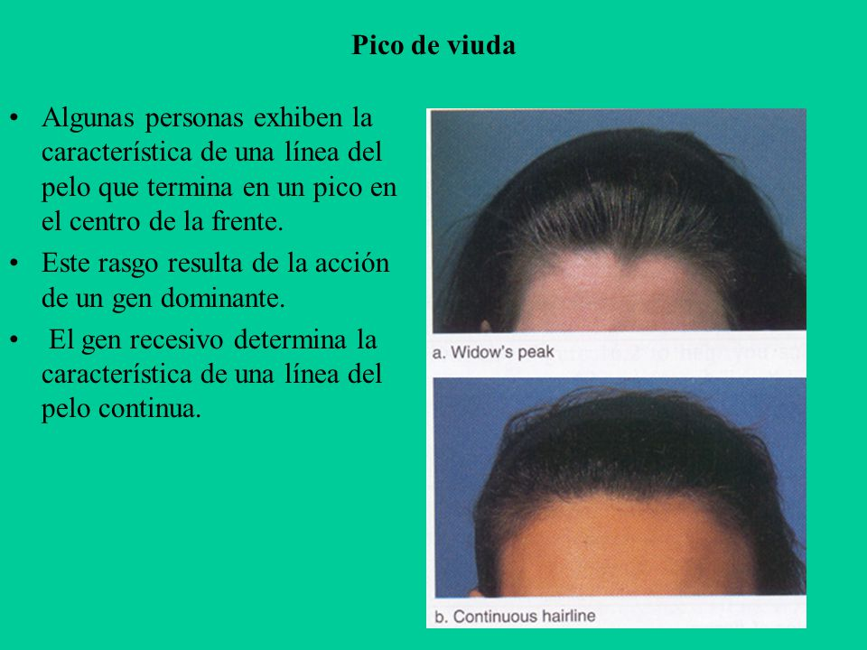 Pico de viuda Algunas personas exhiben la característica de una línea del pelo que termina en un pico en el centro de la frente.