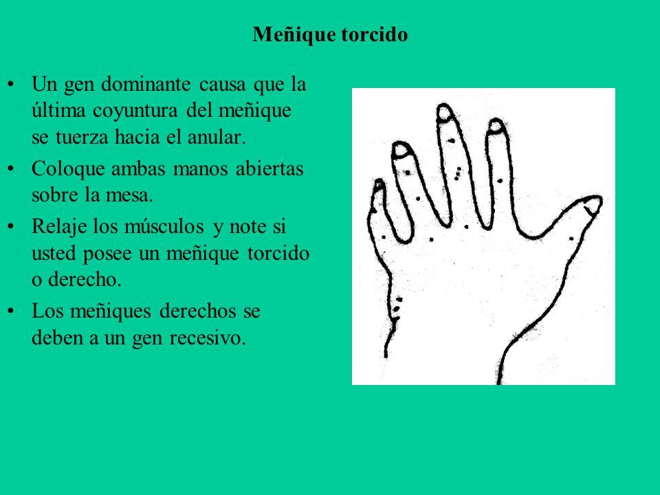 Meñique torcido Un gen dominante causa que la última coyuntura del meñique se tuerza hacia el anular.