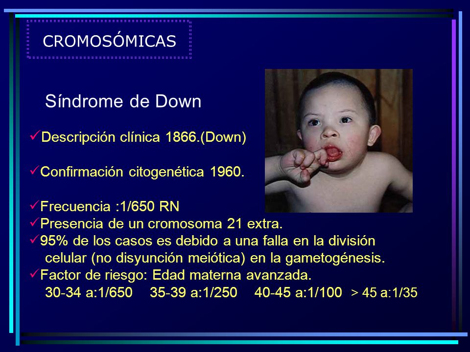 Síndrome de Down CROMOSÓMICAS Descripción clínica 1866.(Down)
