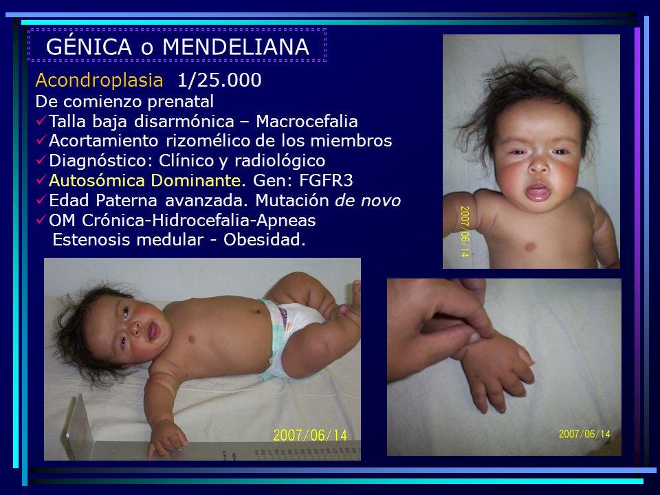 GÉNICA o MENDELIANA Acondroplasia 1/25.000 De comienzo prenatal