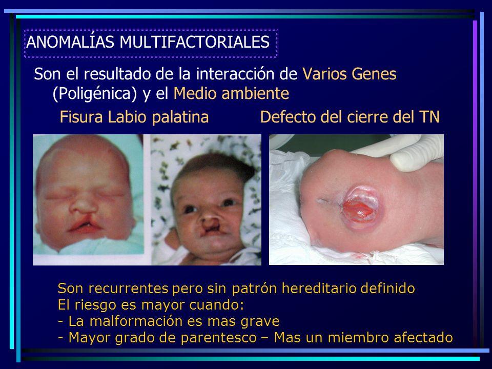 ANOMALÍAS MULTIFACTORIALES