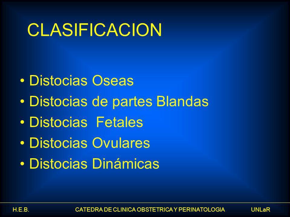 CLASIFICACION Distocias Oseas Distocias de partes Blandas