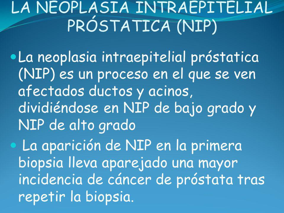 LA NEOPLASIA INTRAEPITELIAL PRÓSTATICA (NIP)