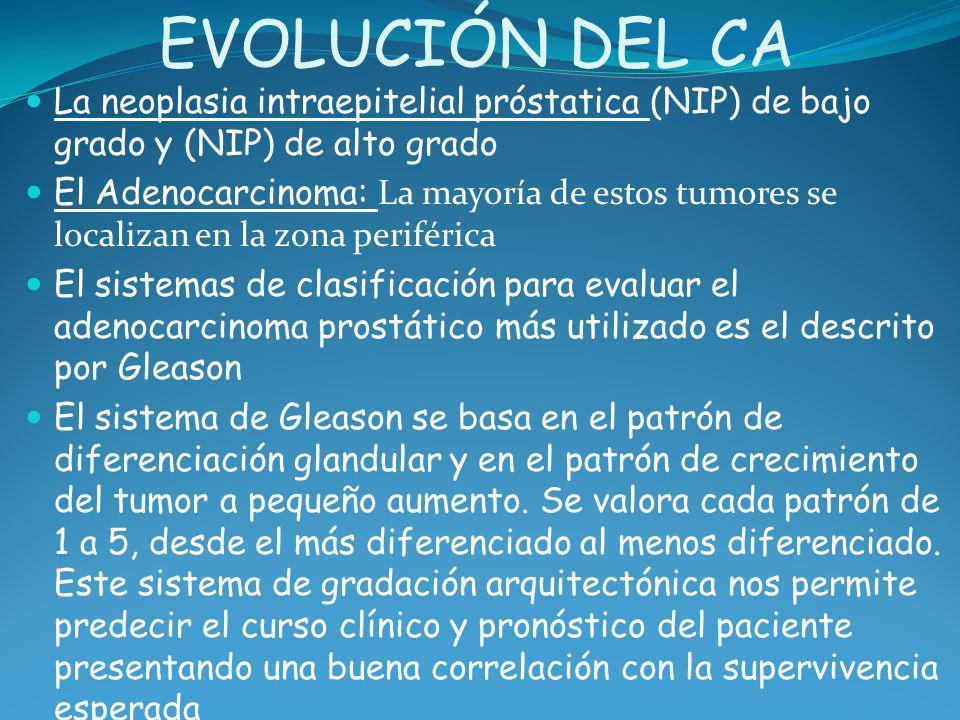 EVOLUCIÓN DEL CALa neoplasia intraepitelial próstatica (NIP) de bajo grado y (NIP) de alto grado.