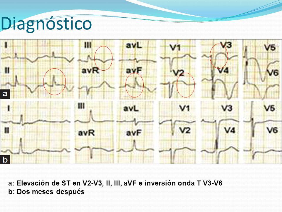 Diagnóstico a: Elevación de ST en V2-V3, II, III, aVF e inversión onda T V3-V6 b: Dos meses después