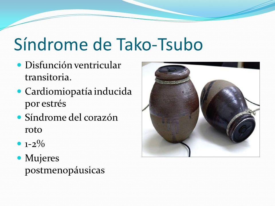 Síndrome de Tako-Tsubo