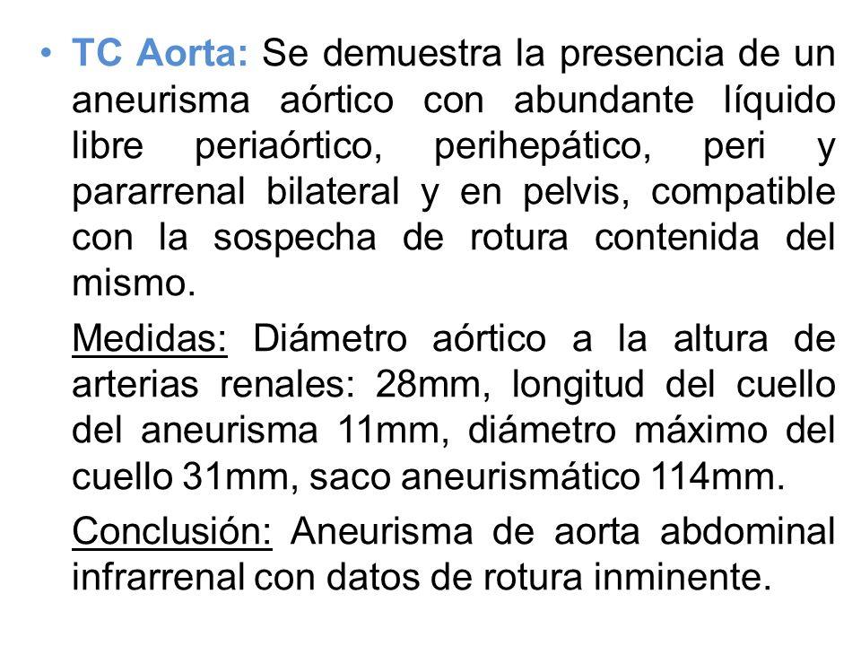 TC Aorta: Se demuestra la presencia de un aneurisma aórtico con abundante líquido libre periaórtico, perihepático, peri y pararrenal bilateral y en pelvis, compatible con la sospecha de rotura contenida del mismo.