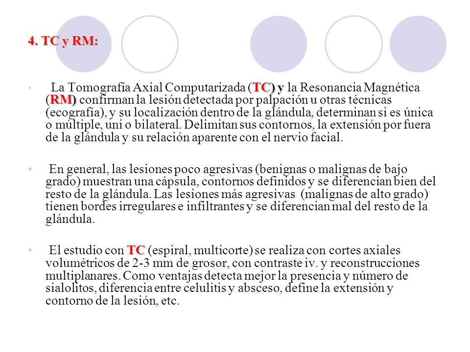 4. TC y RM: