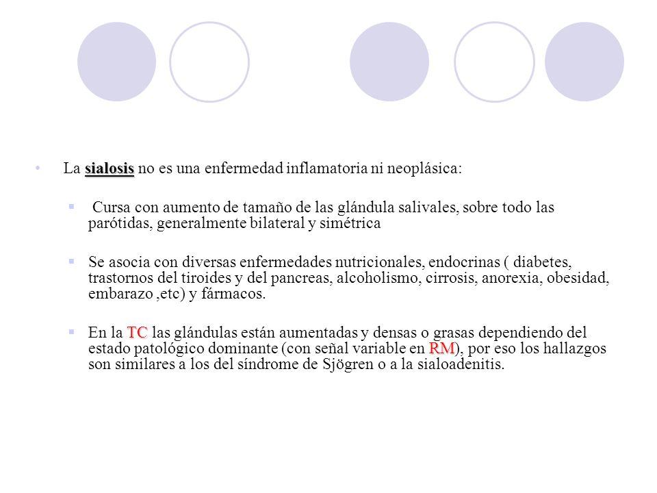 a b. La sialosis no es una enfermedad inflamatoria ni neoplásica: