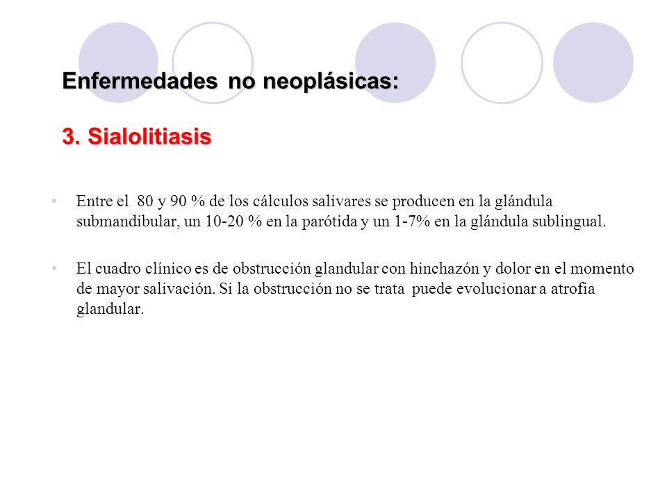 Enfermedades no neoplásicas: 3. Sialolitiasis