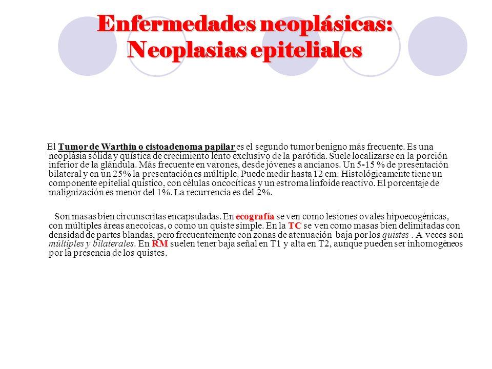 Enfermedades neoplásicas: Neoplasias epiteliales