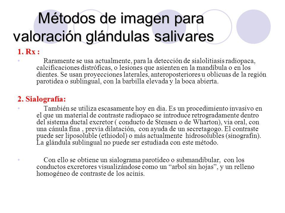 Métodos de imagen para valoración glándulas salivares