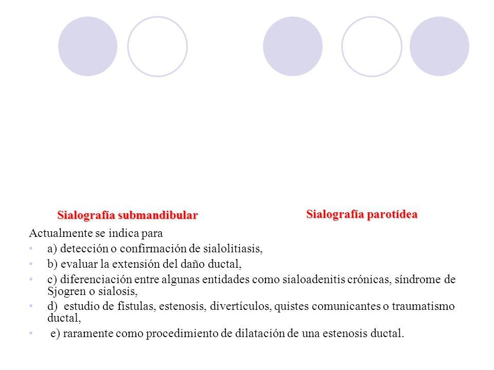 Sialografía submandibular