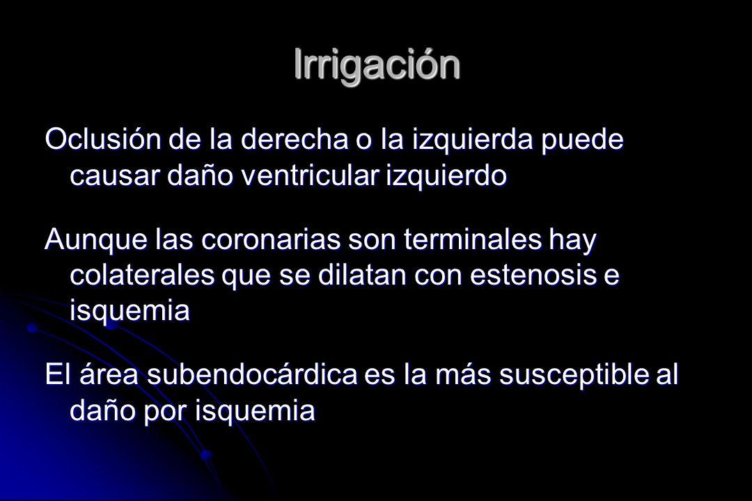 Irrigación Oclusión de la derecha o la izquierda puede causar daño ventricular izquierdo.
