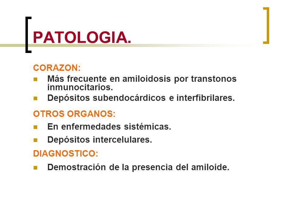 PATOLOGIA. CORAZON: Más frecuente en amiloidosis por transtonos inmunocitarios. Depósitos subendocárdicos e interfibrilares.