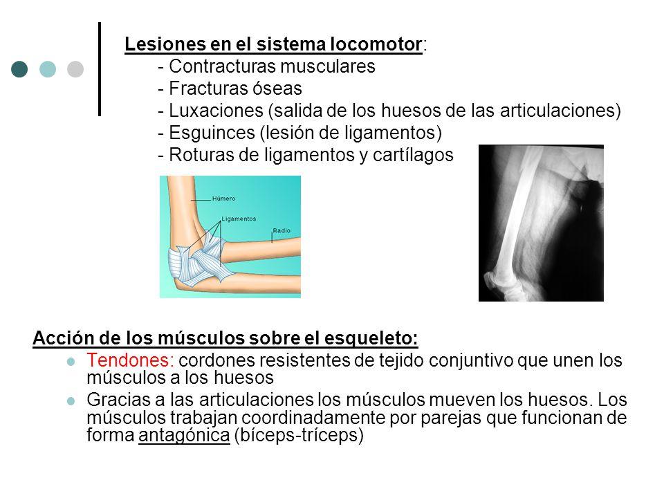 Lesiones en el sistema locomotor: